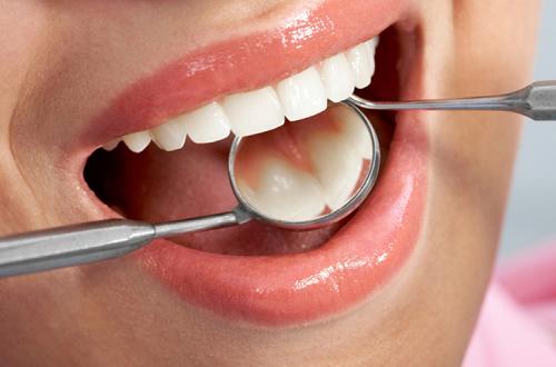O Que Fazer, Se Você Tem Muito Medo de Dentista!