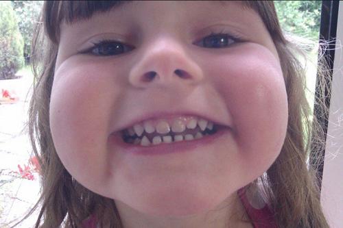 Por Que Não Se Deve Extrair Dentes de Leite Antes do Tempo