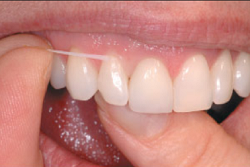 Higiene Bucal – Fio Dental
